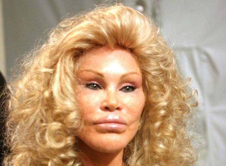 jocelyn-wildenstein-ou-la-femme-chat-un-exemple